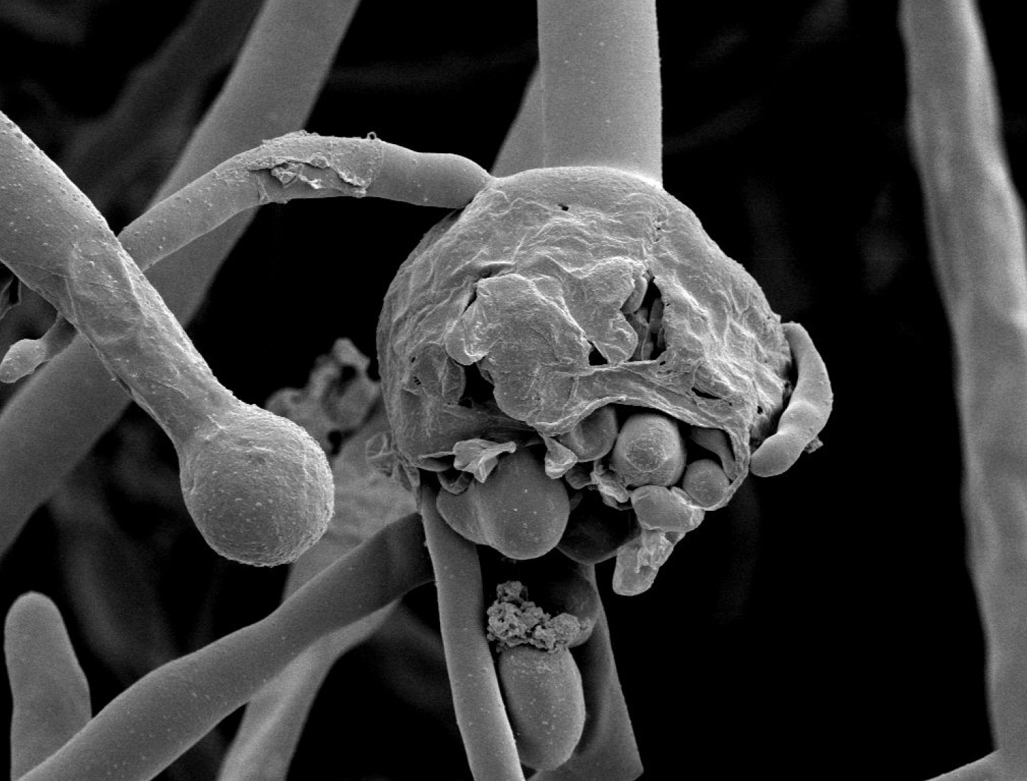 India's Black Fungus Epidemic Sparks Misinformation Storm